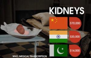 Kidney Prices