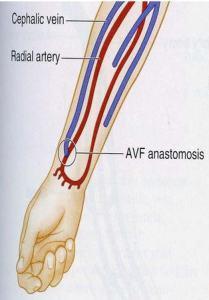 Artery - vein fistula
