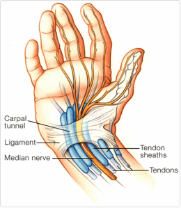 carpal-tunnel1