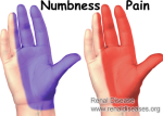 Numbness and pain